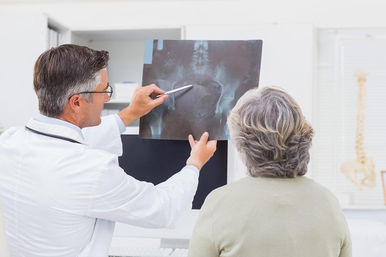 Cáncer de próstata, síntomas y signos iniciales