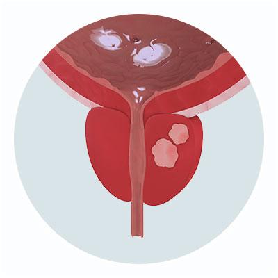 Cancer de Prostata - Clínica Dr. Busto