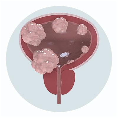 Tratamiento Cancer de Vejiga - Clinica Urologia Dr. Busto - La Coruña