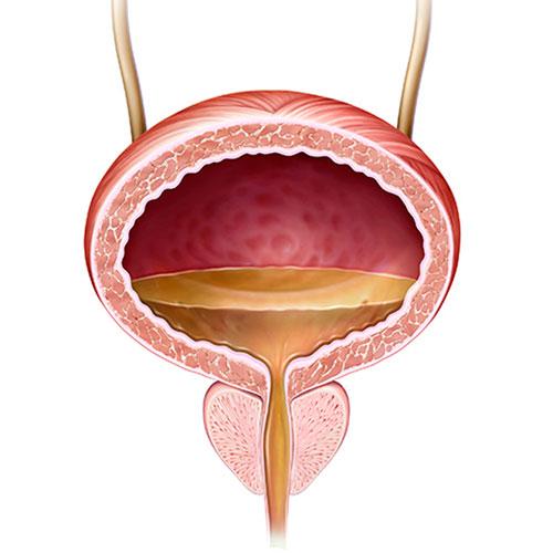 Próstata y Vejiga