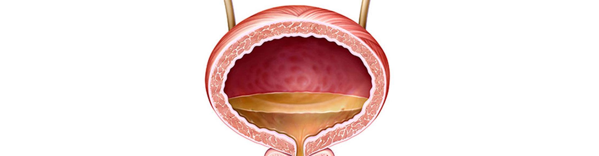 Vejiga Urinaria Inflamada – Síntomas, con infección y sin infección
