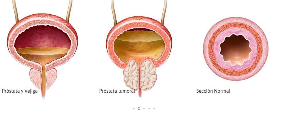 ¿Se cura el cáncer de próstata localizado?